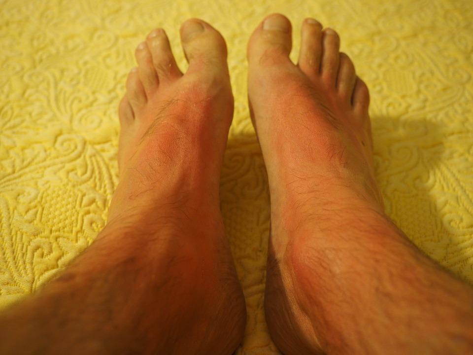 allergic-reaction-rash-2