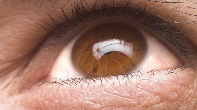 glaucoma---6-things-you-need-to-know-about-the-eye-condition-that-could-make-you-go-blind-136396716441403901-150310150308