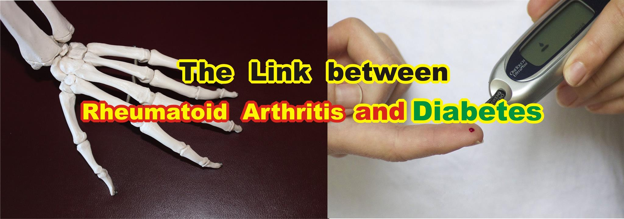 The Link between Rheumatoid Arthritis and Diabetes