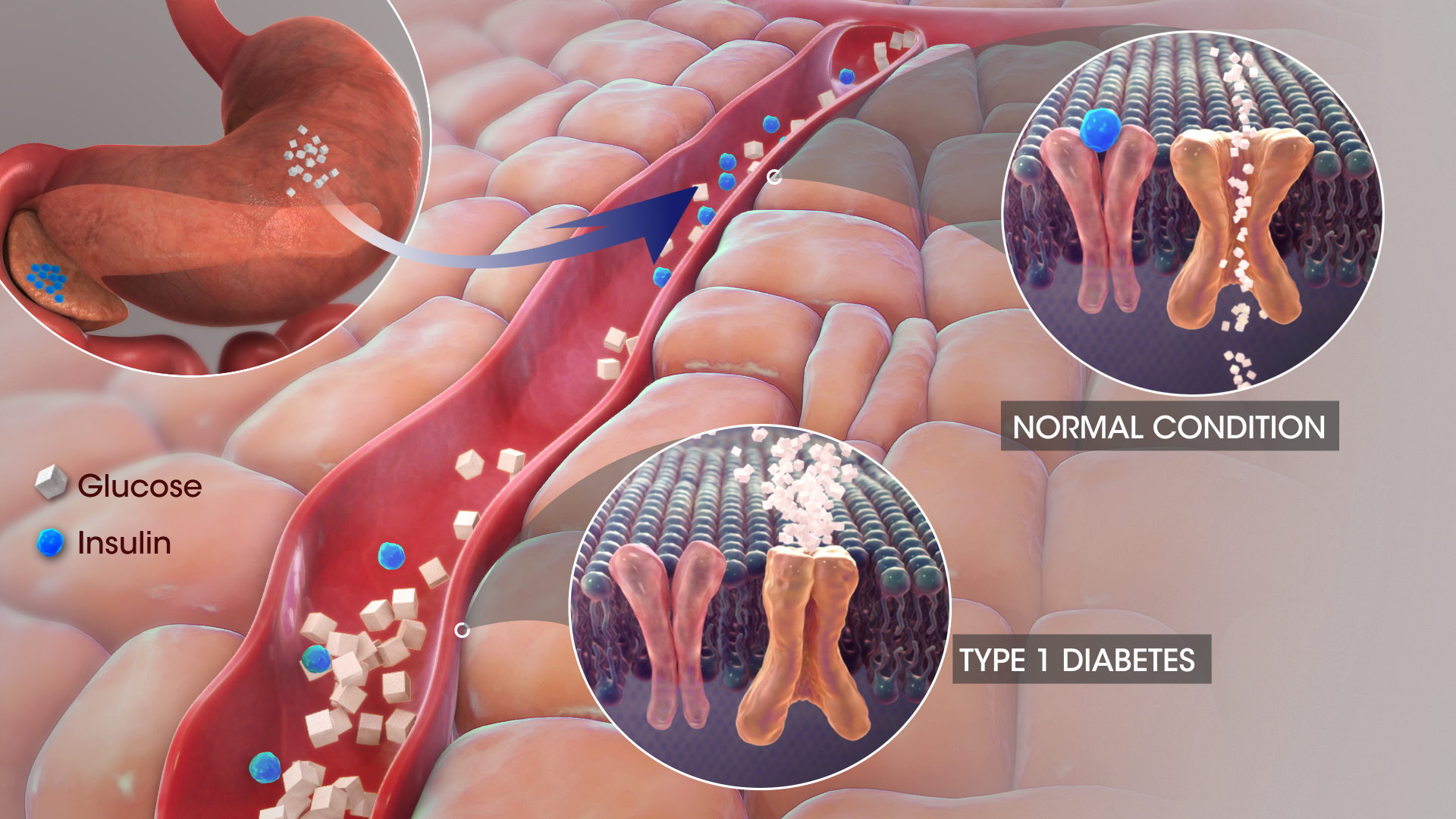 3D_medical_animation_still_of_Diabetes
